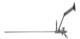 Уретеро-реноскопии